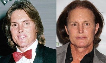 bruce jenner before and after