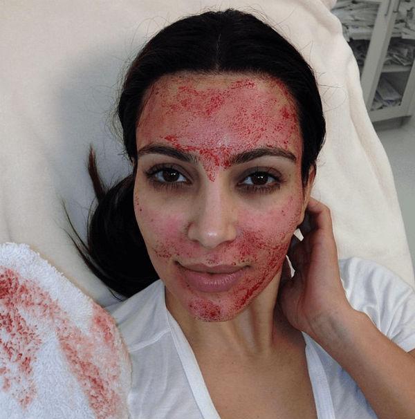 kim kardashian blood facial