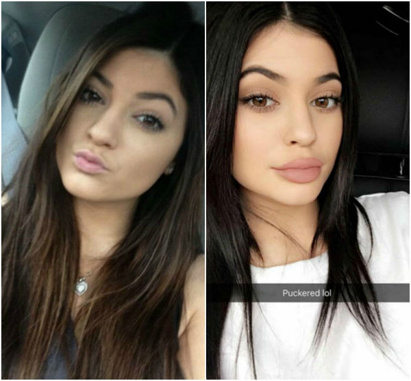 kylie jenner lips before after